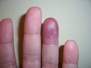Paroxysmal Finger Hematoma Definition, Symptoms, Causes, Treatment
