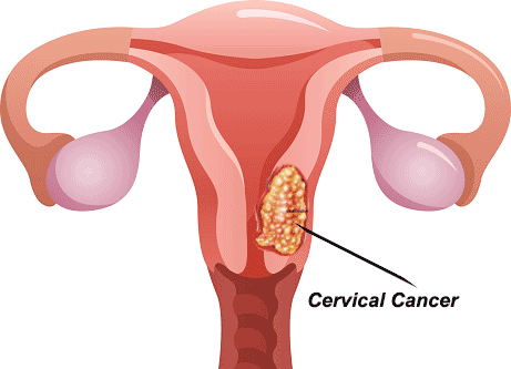 Every Woman Should Know These 3 Symptoms Of Vaginal, Cervical, And Uterine Cancer
