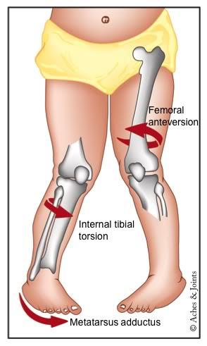 tipos de protectores de pies y piernas