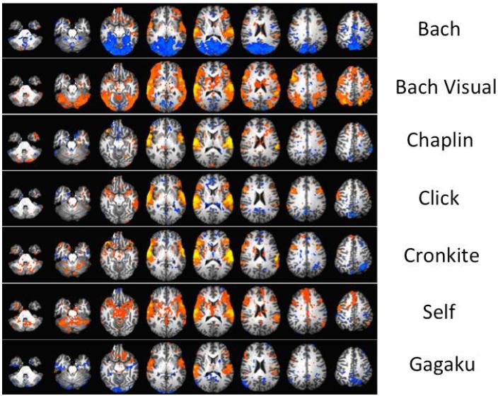 図:音楽の種類とfMRI