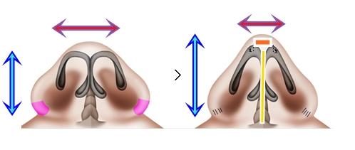Sarkık burun ucu estetiği - Sarkık burun ucu tedavisi - Sarkık burun ucu operasyonu - Düşük burun ucu ameliyatı - Burun ucu kaldırma - Gülerken burun ucu sarkması tedavisi - Burun ucu estetiği - Tip plasti  - Sarkık burun ucu ameliyatı - Sarkık burun ucu estetiği teknikleri