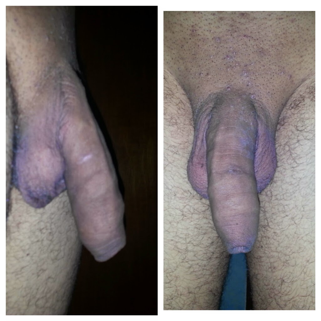 Adult Circumcision Style 120