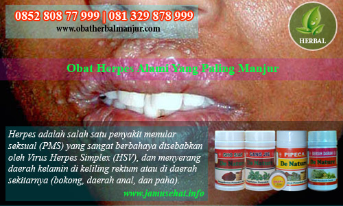 obat sakit herpes