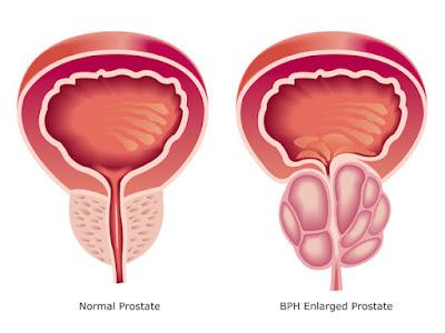 Cáncer  de prostata Síntomas La mayoría de los hombres Ignoran