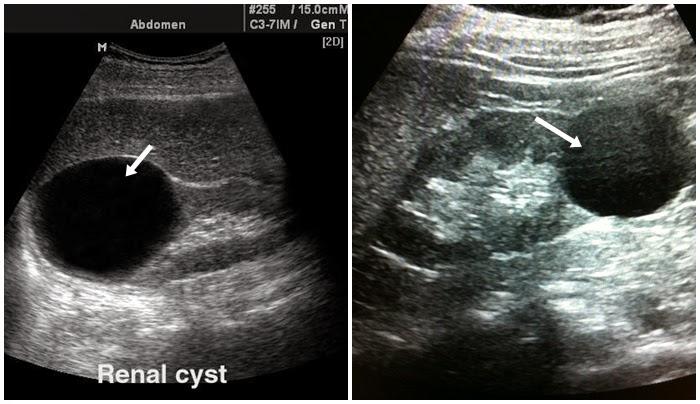 BILIK SONOGRAFER  Renal Ultrasound USG Ginjal