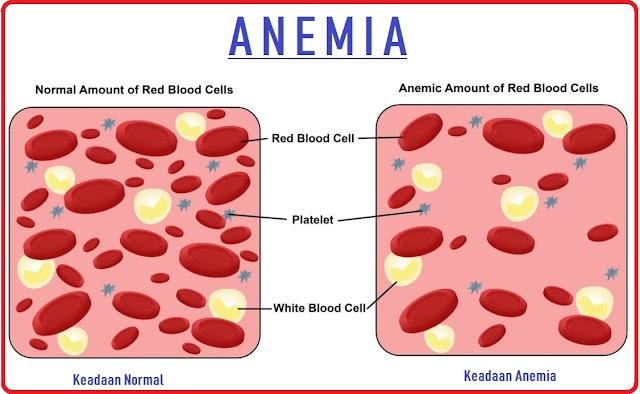 Bahaya Anemia pada Wanita Penyebab Gejala dan Pencegahannya