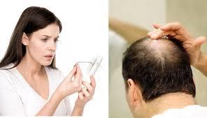 DHT – thủ phạm gây ra bệnh rụng tóc, hói đầu
