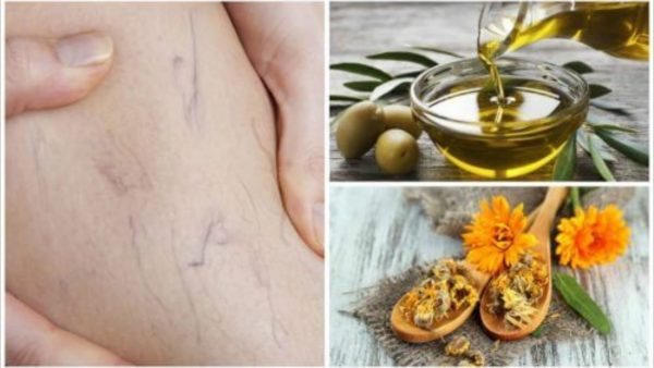 Doctors Recommend This Tip To Olive Oil To Treat Varicose Veins
