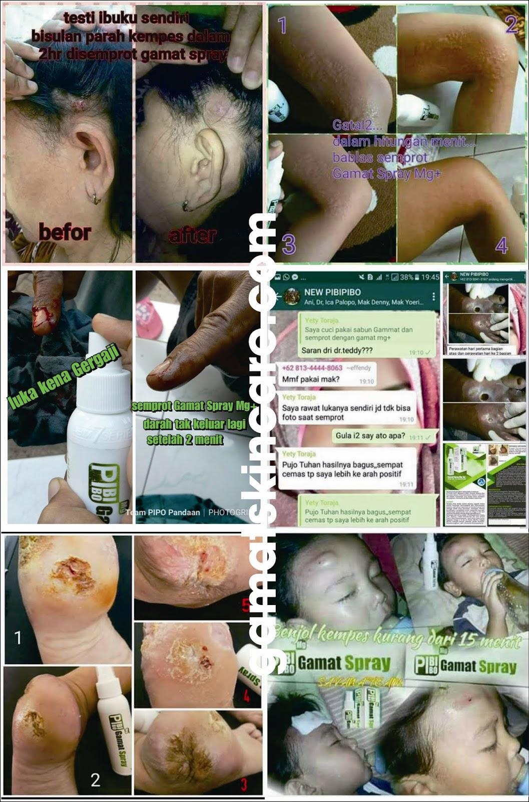 PibiPibo Gamat Spray Mg+ Ag+, PibiPibo Gamat Cream, PibiPibo Gamat Serum, PibiPibo Gamat Body Lotion, PibiPibo Gamat Facial Wash, PibiPibo Skin Cleanser, pibipibo, pibipibo sabun collagen, pibipibo adalah, pibipibo gamat serum, pibipibo gamat spray manfaatnya, pibipibo produk, pibipibo sabun, pibipibo serum, pibipibo black soap, pibipibo green coffee, pibipibo facial wash, gamat, gamat emas, gamat hpai, gamat gold, gamat spray, gamat jelly, gamat emulsion, gamat emas kapsul, gamat kapsul, gamat pibipibo, gamat luxor, teripang emas, teripang emas laut, teripang emas kering, teripang emas msi, teripang emas wikipedia, teripang emas dan khasiatnya, teripang emas pdf, teripang emas qnc jelly gamat, teripang emas kapsul, teripang emas hpai, teripang emas klasifikasi,