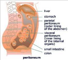 cancer of peritoneal lining cancerul de prostata se poate vindeca