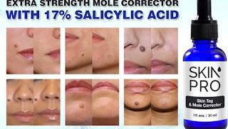 skin tags, mole, Skin Tag Remover