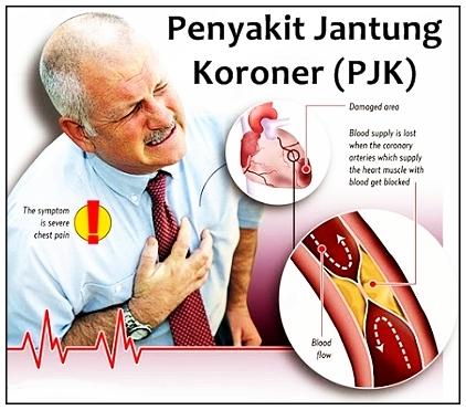 Obat Bahan Alami Untuk Penderita Jantung Koroner ADDY