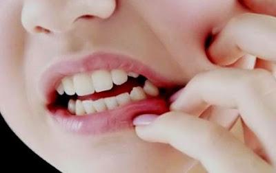 vitamin untuk gusi sehat, cara merawat gusi yang rusak, buah yang baik untuk gusi bengkak, cara merawat gusi turun