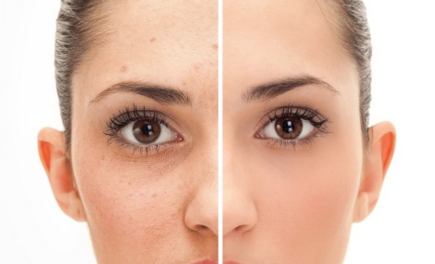 Home remedies for acne scars jdsremedies ccuart Image collections