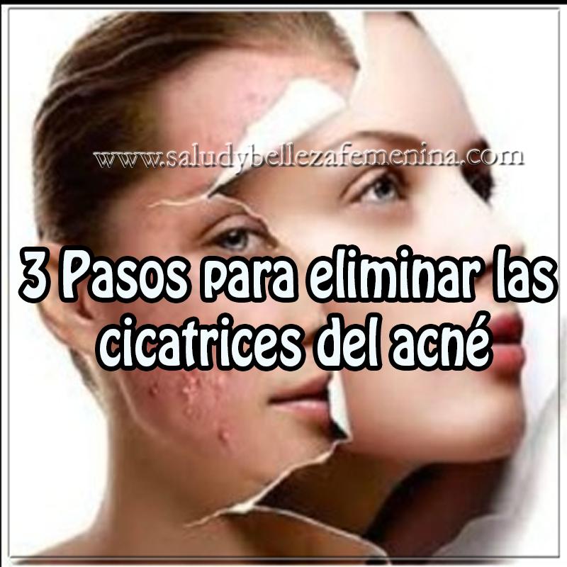 Mascaras faciales,  recetas para eliminar cicatrices del acné , belleza,