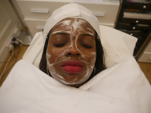 MILK CHEMICAL PEEL AT HARLEY STREET MD