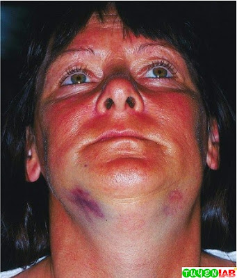 Bilateral Mandibular Fracture