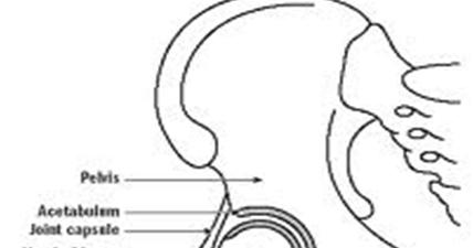 MBBS Medicine (Humanity First): Developmental dysplasia of