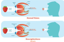 Myopia - All you wish to understand regarding shortsightedness