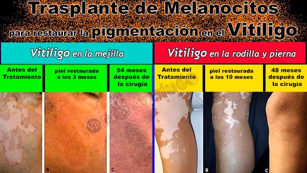 Trasplante de Melanocitos-Tratamiento para el vitiligo