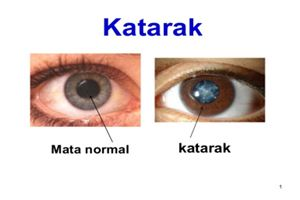 Pengobatan Alternatif Mata Katarak yang Tersedia