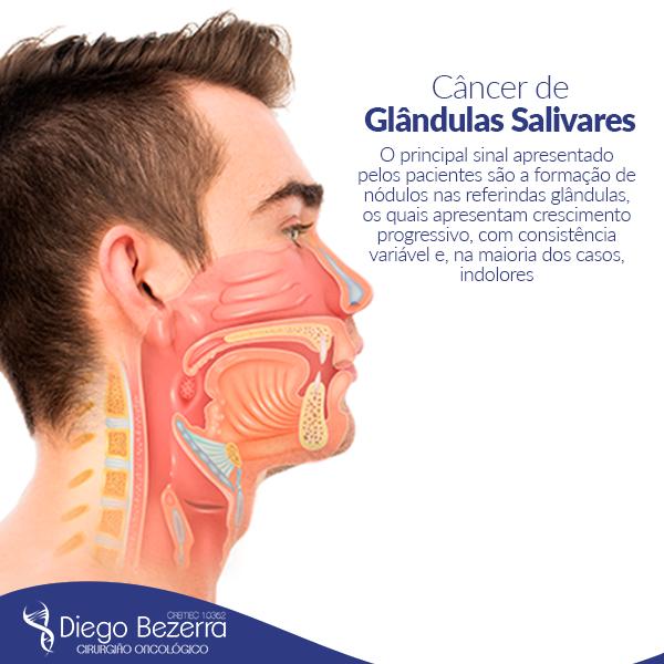 Câncer de glândulas salivares -  Dr. Diego Bezerra (Cirurgião Geral - Cirurgião Oncológico)
