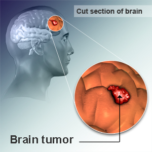 Sounds adult brain tumors what