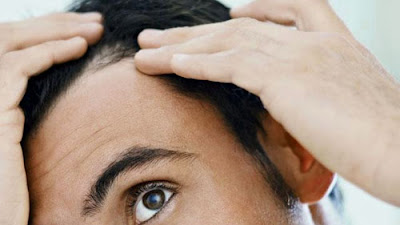 Head Acne Breakouts - The right way to take care of Scalp Zits