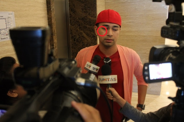 Raffi Ahmad saat diwawancarai oleh berbagai media terkait isu tentang pemukulan keluarga Gigi terhadap dirinya