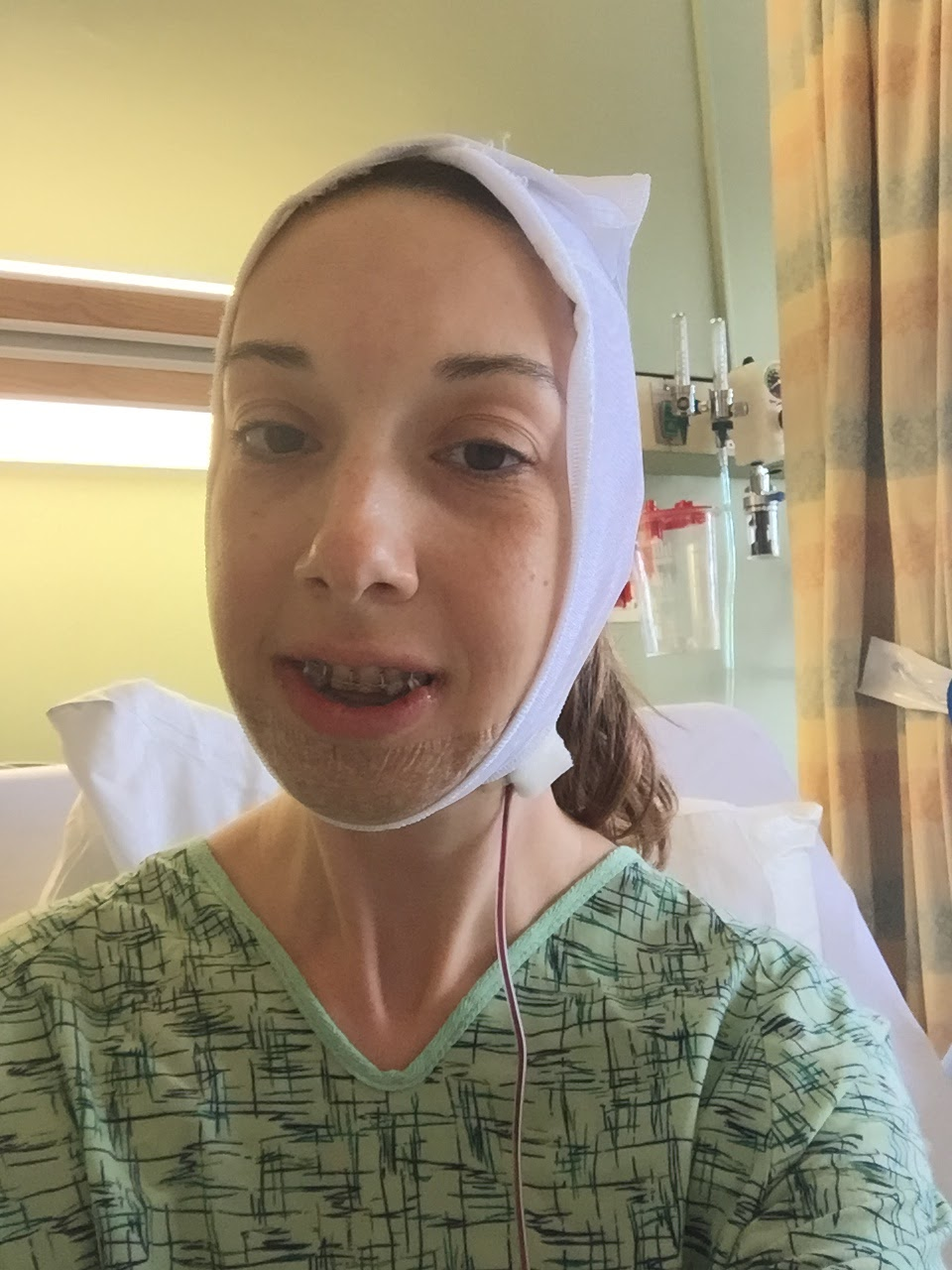 My Journey Through Jaw Surgery Surgery Bilateral