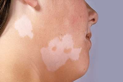 3 Tanaman Menyembuhkan Vitiligo