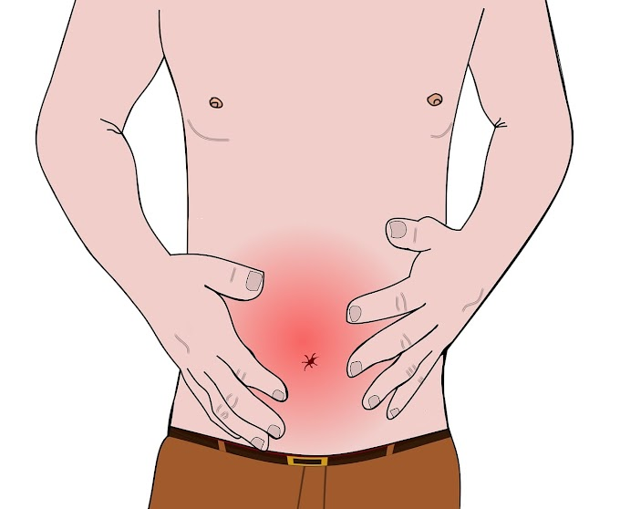 How to treat constipation with natural remedies