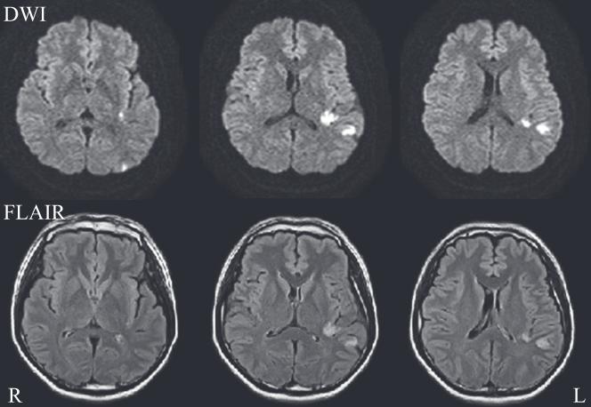図:ハゲ治療薬で脳卒中