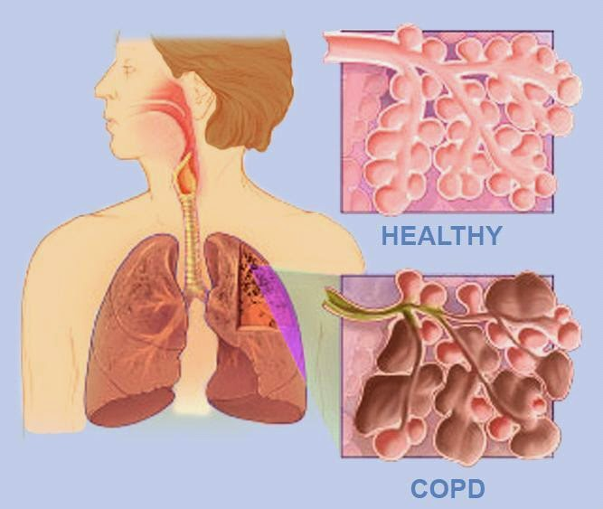 COPD is an abbreviation of the English term  Causes, Symptoms And Treatment Of COPD Disease