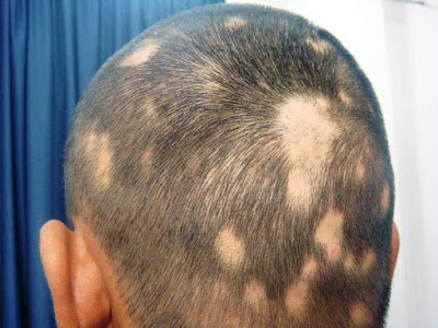 is a disease that causes round bald spots Causes And Treatment Of Alopecia Areata (Hair Loss)