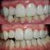 How to remove plaque from teeth quickly and easily