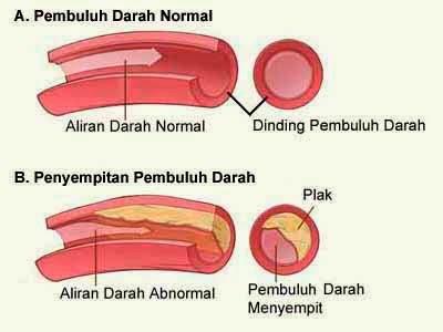 Penyebab Penyempitan Pembuluh Darah Jantung