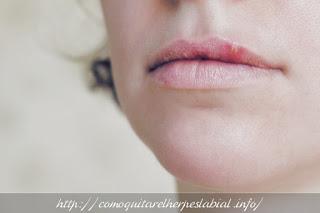 cómo sanar el herpes labial