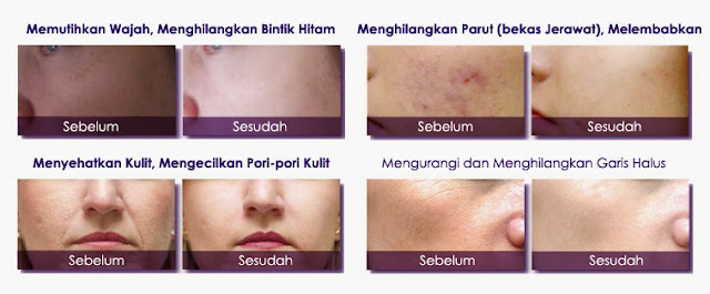 Fungsi dan Khasiat La'Soul Diamond Hydration Sleeping Mask, fungsi lasoul sleeping mask, testimoni la'soul sleeping mask