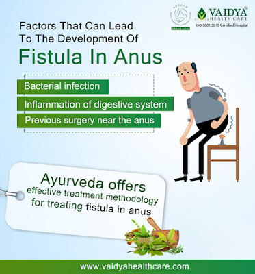 ayurvedic treatment for anal fistula in kerala