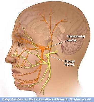 Facial pain associated