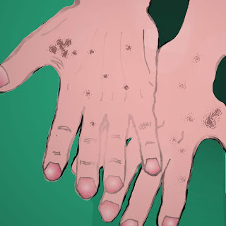 Sciocchezze da pigmentazione per la persona