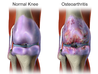 Difference between a normal knee and one affected by osteoarthritis.