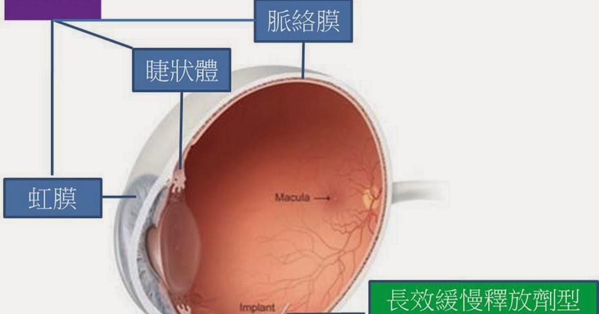 心盲眼將盲的外科工匠: 葡萄膜炎最新眼內注射治療