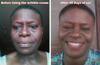 (Unbelievable) See how a 56 year old woman got rid of her wrinkles