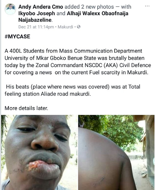 Photos: Mass Communication student allegedly assaulted by Zonal commandant of NSCDC in Benue State