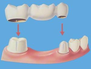 牙橋安置在前後兩顆牙齒的上面,中間就可以多一顆牙齒