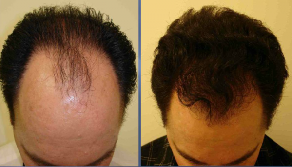 natural Mask That Make Your Hair Grow Faster