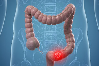 Can a young person get colon cancer