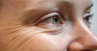 Thin wrinkled skin and texture not only occur on the face, but also the skin of other parts